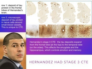 Aaron Hernandez - CTE Brain Injury - Murder Defenses - Criminal Law - 70 Slides