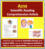 Acne - Science Reading Article - Grades 5-7