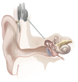 After the Cochlear Implant
