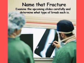 Analyzing Broken Bones
