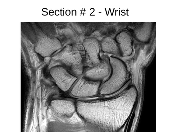 Anatomical Planes Section Identification
