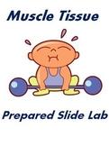 Muscle Tissue Prepared Slide Lab Activity - Anatomy & Biology