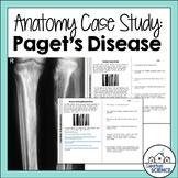 Patient Case Study Example for Skeletal System: Bone Disease