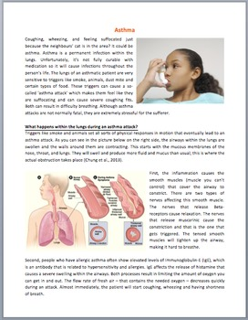 Asthma and Asthma Attacks - Science Reading Article