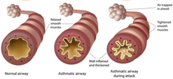 Asthma and Gas Laws