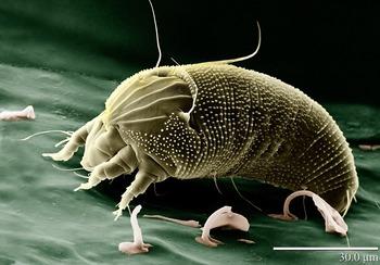 Biology - Microscope technology (Light vs electron microscopes)