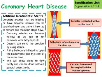 Biology (Science) Coronary Heart Disease (CHD) Lesson & Activities