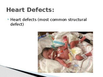 Birth Defects Power Point/Student Notes/Key