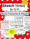 Bone Fracture & Repair Sketch Doodle Notes, Student Notes, incl FIB Version!