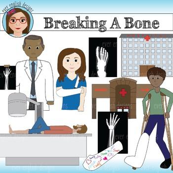Breaking A Bone Clip Art