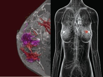 Breast Cancer PPT