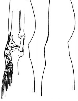 Build a Knee Joint with Connective Tissue