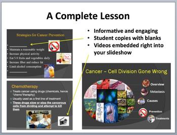 Cancer - Complete 5E Lesson Bundle