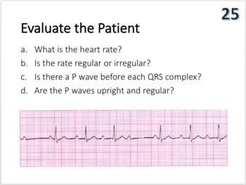 Cardiovascular System Task Cards