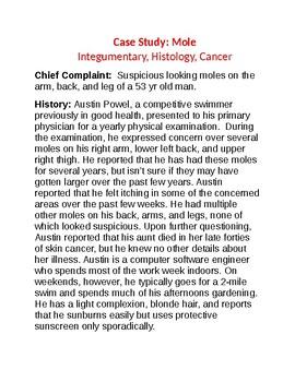 Case Study: Mole (Integumentary, Histology, Cancer)