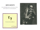 Child Development unit 2 day 2 power point Birth Defect factors-Don't Eat Pete