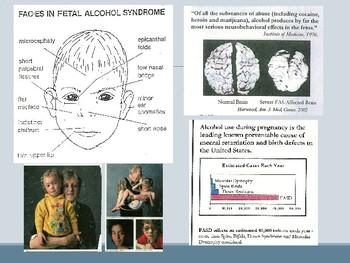 Child Development unit 2 day 3 power point Environmental Birth Defects-Jenga
