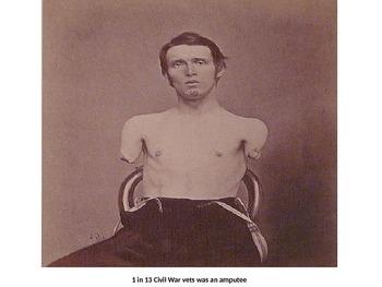 Civil War, Slavery, and Reconstruction All-Inclusive Bundle