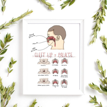 Cleft Lip + Palate Graphics