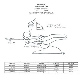 Clock Positions for Right and Left Handed Clinicians