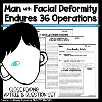 """Close Reading Article """"Man with Deformity Endured 36 Operations to Build Face"""""""