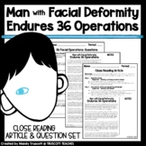 "Close Reading Article ""Man with Deformity Endured 36 Operations to Build Face"""