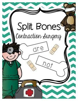 Split Bones - Contraction Surgery