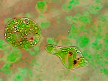 Common Freshwater Microbes & Tardigrades (Water Bears)
