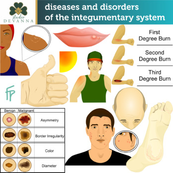 Diseases & Disorders Of The Integumentary System Clip Art