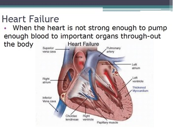 Diseases - Heart Disease (SMART BOARD)