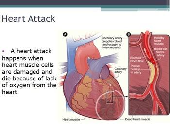 Diseases - Heart Disease (SMART BOARD)