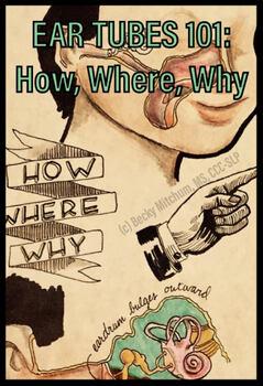 EAR TUBES 101:  How, Where, Why
