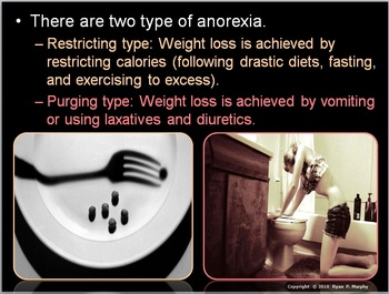 Eating Disorders Lesson, Anabolic Steroids
