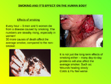 Effects Of Smoking power point