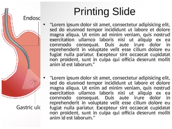 Endoscopy PPT Template