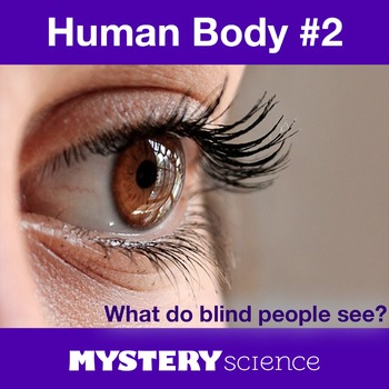 Human Body NGSS:Eyes and Vision ❤ BUNDLE:Activity, Reading,Assessment—SALE