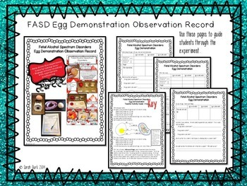 Fetal Alcohol Spectrum Disorders Egg Demo Observation Record - Child Development