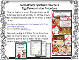 Fetal Alcohol Spectrum Disorders Egg Demo Procedure (FASD) - Child Development
