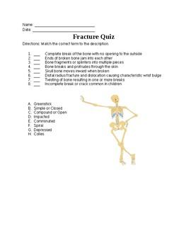 Fracture Quiz