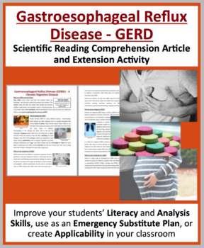 GERD and Acid Reflux - A Digestive System Disease - Reading Article