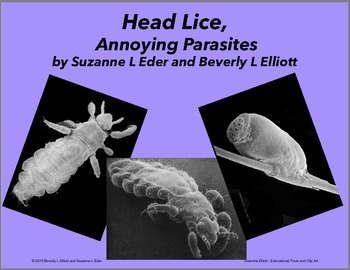 Head Lice, Annoying Parasites seen in Scanning Electron Microscope Images
