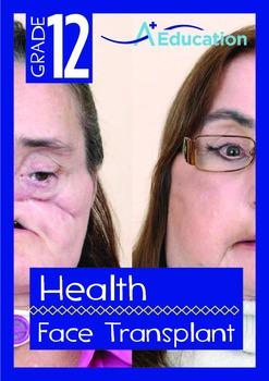 Health - Face Transplant - Grade 12