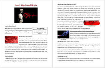 Heart Attack and Stroke - Science Reading Article - Grades 5-7