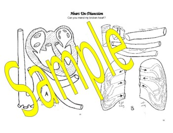 Heart Dissection Puzzle