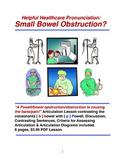 Helpful Healthcare Pronunciation:Small Bowel Obstruction?