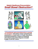 ESL Distance Learning Healthcare Pronunciation: Small Bowel Obstruction?