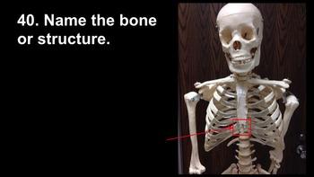 Human Anatomy Axial Skeleton Quiz