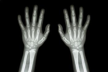 Human Body-Bones-Levels A/B/C