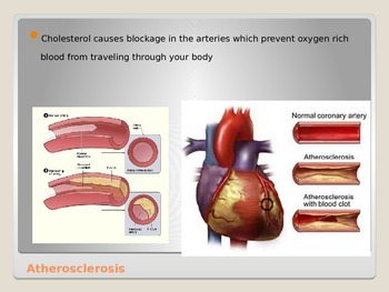 Anatomy - Human Body - Cardiovascular System