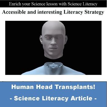 Sub Plan - Head Transplants